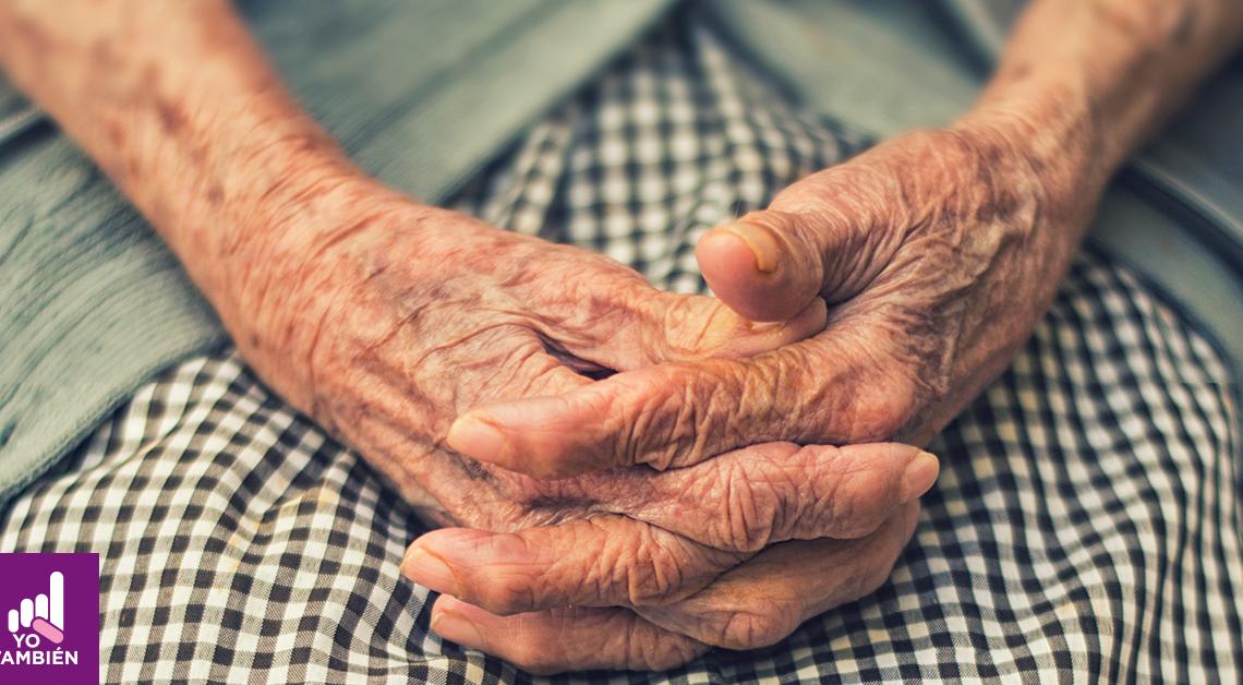 Fotografia de las manos de una indigena mexicana con artritis