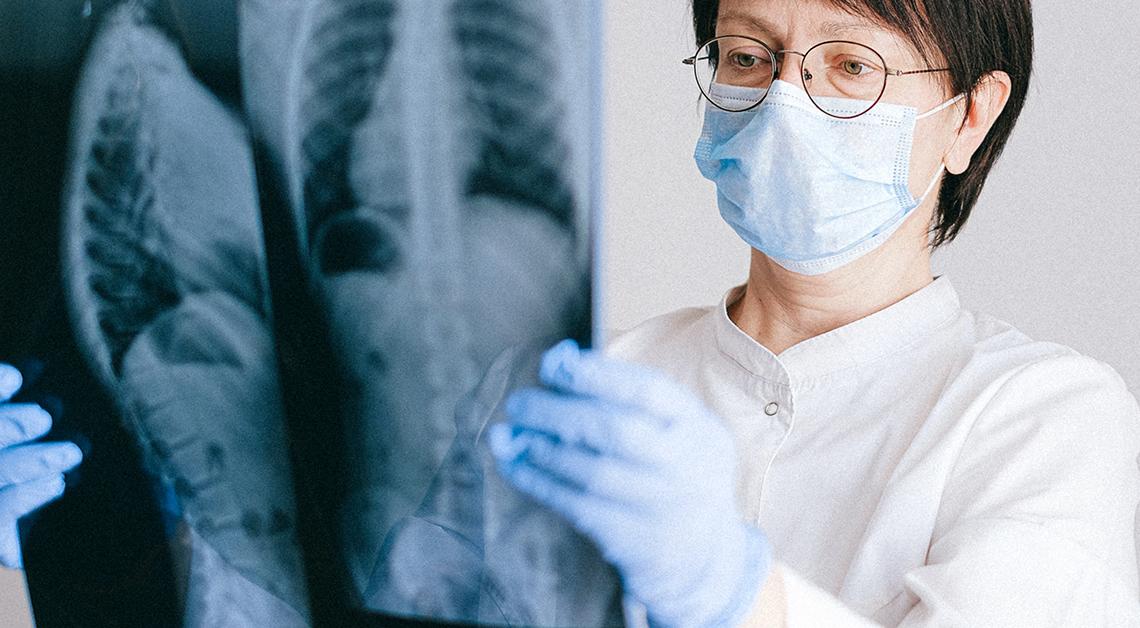 Fotografía de una doctora revisando una placa de rayos x, lleva puesta una bata blanca, lentes, cubrebocas y guantes azules.